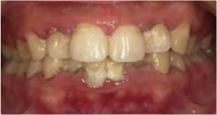 歯周治療1前