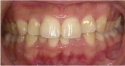 歯周治療1後